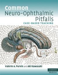Common Neuro-Ophthalmic Pitfalls: Case-Based Teaching (Cambridge Medicine)