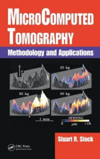 MicroComputed Tomography: Methodology and Applications