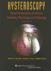 Hysteroscopy: Visual Perspectives of Uterine Anatomy, Physiology, and Pathology