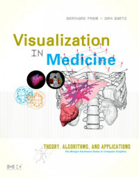 Visualization in Medicine: Theory, Algorithms, and Applications (The Morgan Kaufmann Series in Computer Graphics)
