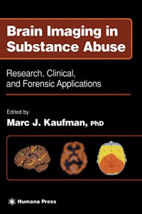 Brain Imaging in Substance Abuse: Research, Clinical, and Forensic Applications (Forensic Science and Medicine)