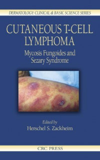 Cutaneous T-Cell Lymphoma: Mycosis Fungoides and Sezary Syndrome (Dermatology: Clinical & Basic Science)
