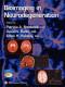 Bioimaging in Neurodegeneration (Contemporary Neuroscience)