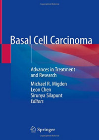 Basal Cell Carcinoma: Advances in Treatment and Research