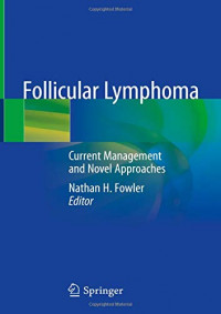 Follicular Lymphoma: Current Management and Novel Approaches