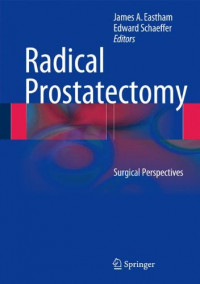 Radical Prostatectomy: Surgical Perspectives