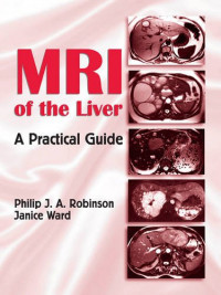 MRI of the Liver: A Practical Guide
